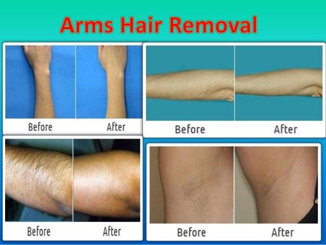 1b2ab426e69f0 Cashgate Scandal Malawi - Importance of Laser hair removal