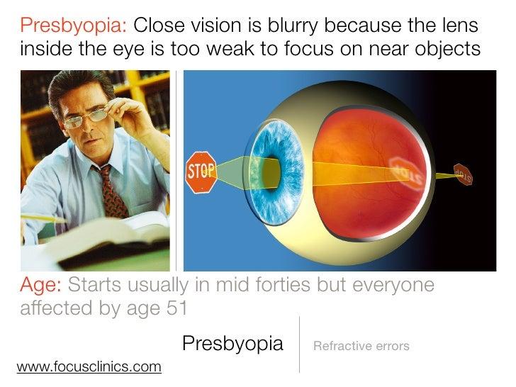 laser eye surgery guide summary