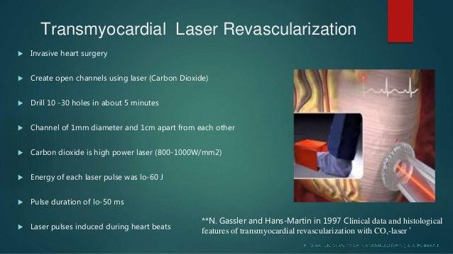 Laser Used In Cardiology Maryam Liaqat