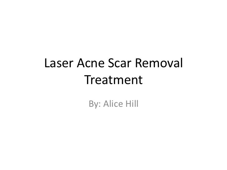 Laser Acne Scar Removal       Treatment       By: Alice Hill