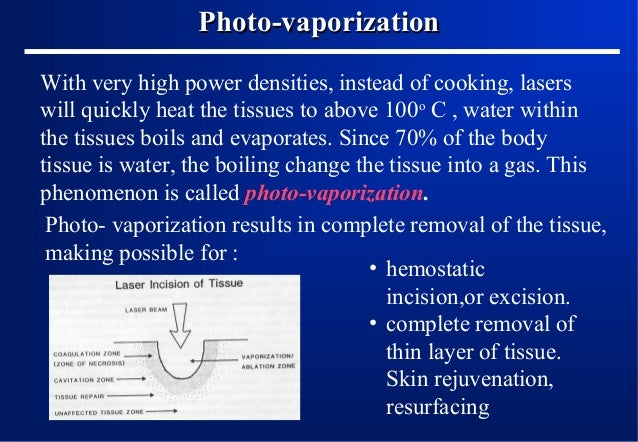 Photo-vaporization With very high power densities, instead of cooking, lasers will quickly heat the tissues to above 100o ...