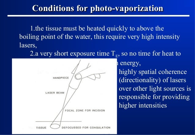 Conditions for photo-vaporization 1.the tissue must be heated quickly to above the boiling point of the water, this requir...