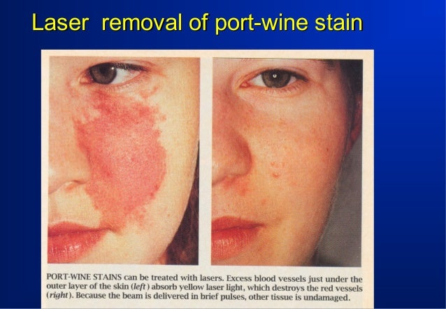 Laser removal of port-wine stain