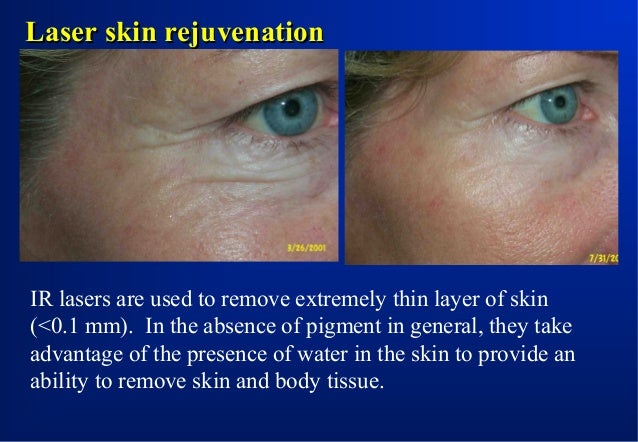 Laser removal of port-wine stain Yellow laser is absorbed by the presence of hemoglobin in blood vessels.