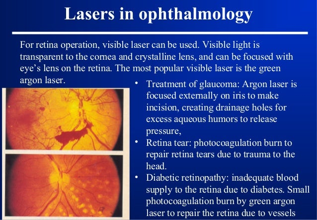 7. Laser hazards and protections