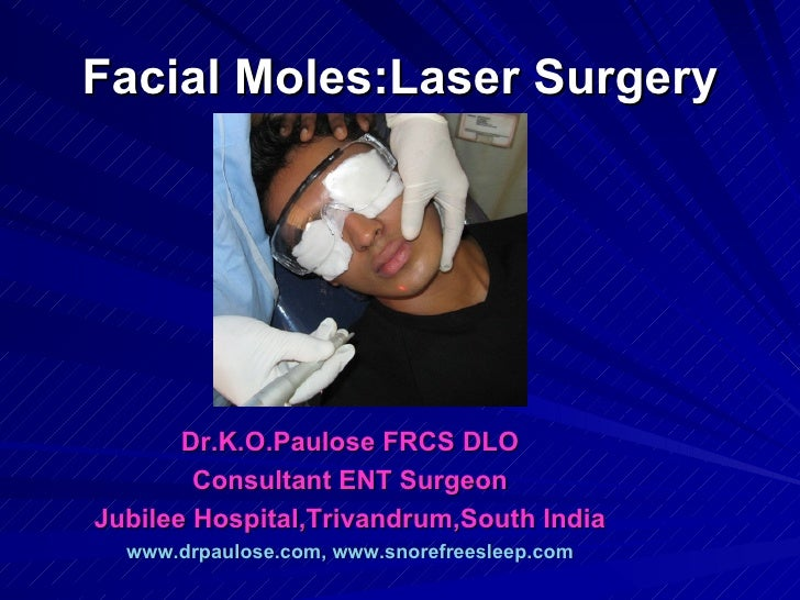 Facial Moles:Laser Surgery       Dr.K.O.Paulose FRCS DLO        Consultant ENT SurgeonJubilee Hospital,Trivandrum,South In...