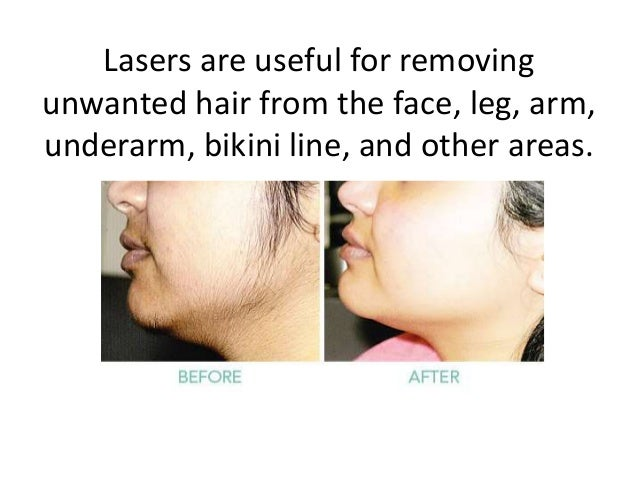 Laser Hair Removal Treatment In Hyderabad Permanent Hair Removal Co
