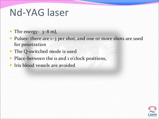 Argon laser   Long pulses (0.2 seconds) for light-colored irides (blue, hazel,  light brown),   short pulses (0.02–0.05 ...