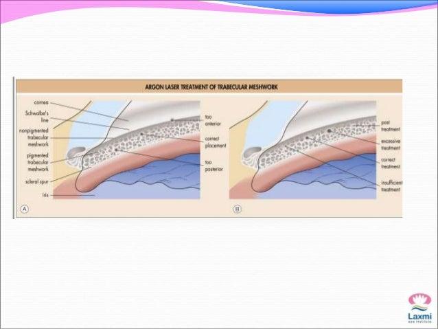 Selective laser trabeculoplasty (arrow) versus argon laser trabeculoplasty  treatment (arrowhead). (Courtesy of M. Berlin,...