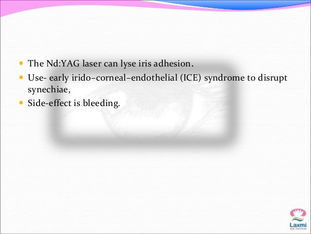 Other uses of lasers   Goniopunctures in NPGS is mandatory, after a while,  as during the surgical procedure itself, the ...