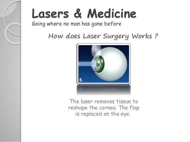 Laser & it's applications