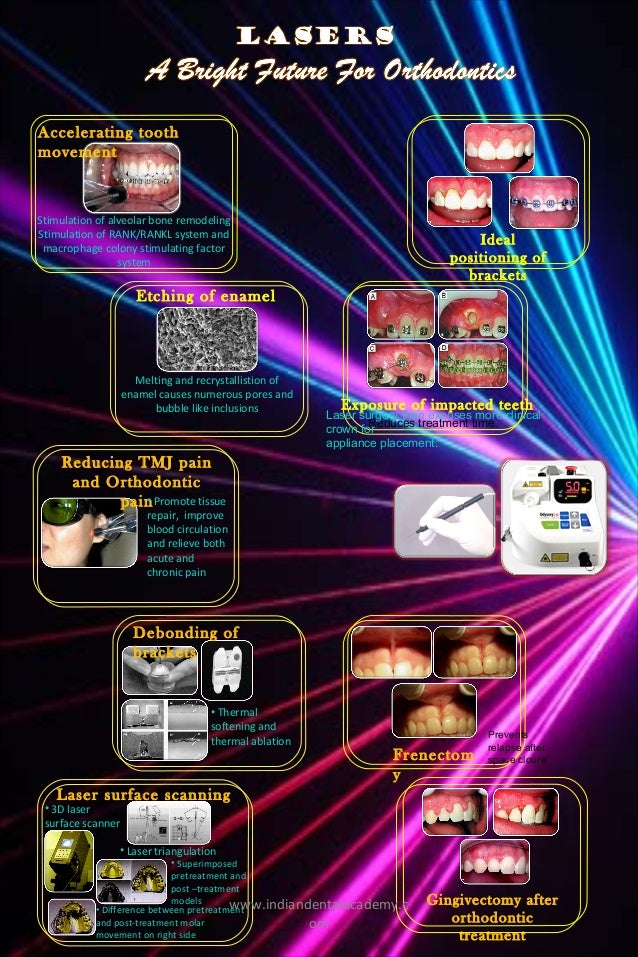 Laser Poster Final Certified Fixed Orthodontic Courses By