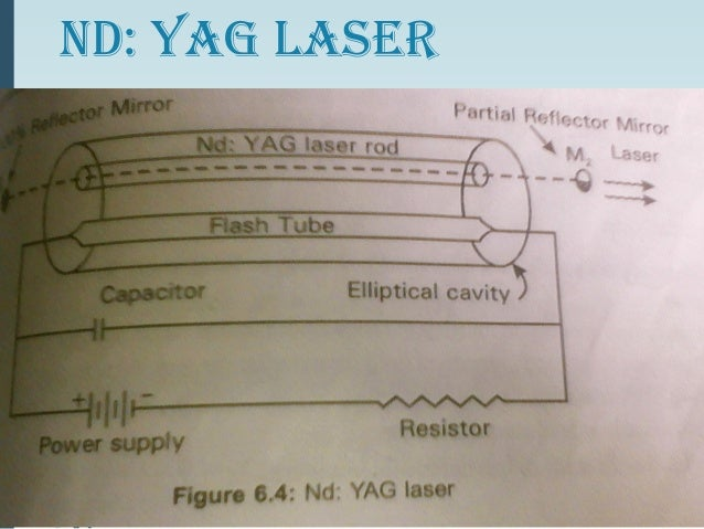 nd yag laser construction and working pdf