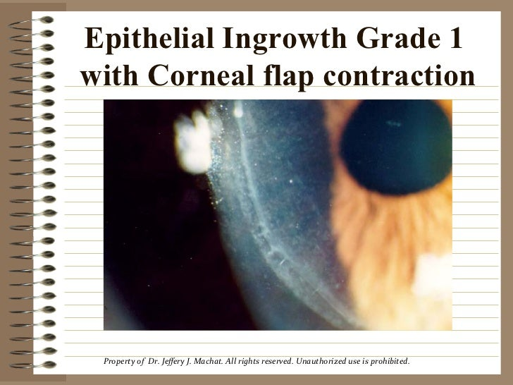 Lasik Complications 2001 Epithelial Ingrowth by Dr. Jeffery Machat