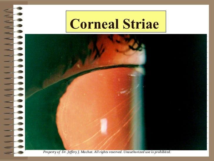 Lasik Complications 2001 Striae by Dr. Jeffery Machat