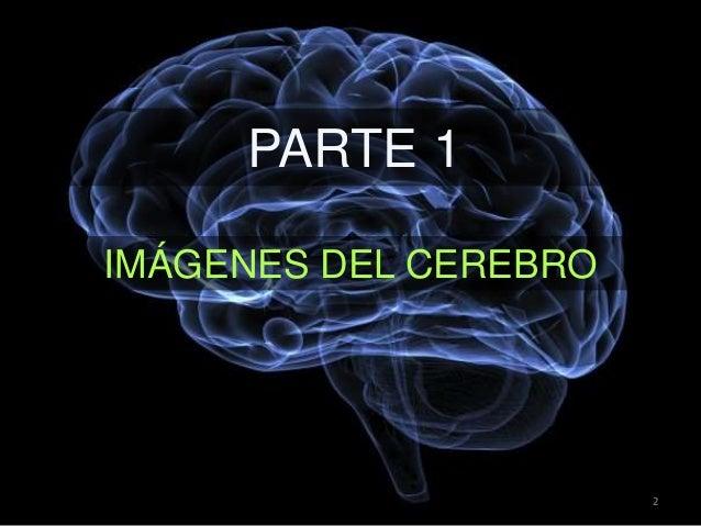 PARTE 1 IMÁGENES DEL CEREBRO 2