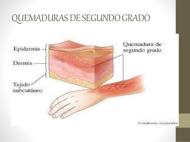 La hemorroide crónica y la trombosis
