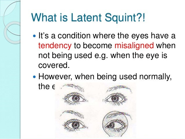 2. What is Latent Squint?!  sc 1 st  SlideShare & Latent squint or (heterophoria)