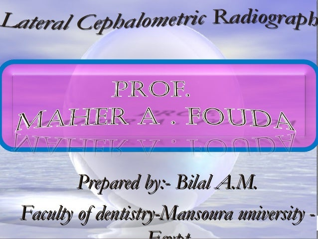 Prepared by:- Bilal A.M.Prepared by:- Bilal A.M. Faculty of dentistry-Mansoura university -Faculty of dentistry-Mansoura u...