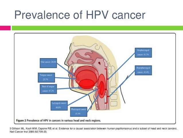 Latest presentation of hpv in head and neck