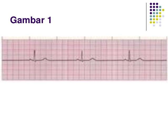 Latihan EKG Strip Slide 2