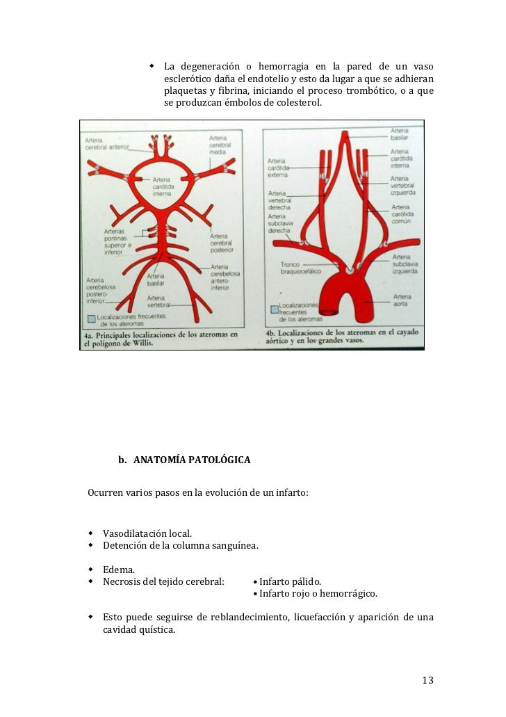 Laura imenez Díaz - accidente cerebrovascular (ictus)