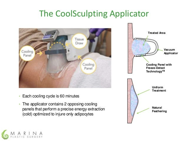 Laura Pietrzak Coolsculpting Treatment Technique New York