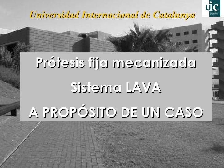 Universidad Internacional de Catalunya Prótesis fija mecanizada Sistema LAVA A PROPÓSITO DE UN CASO
