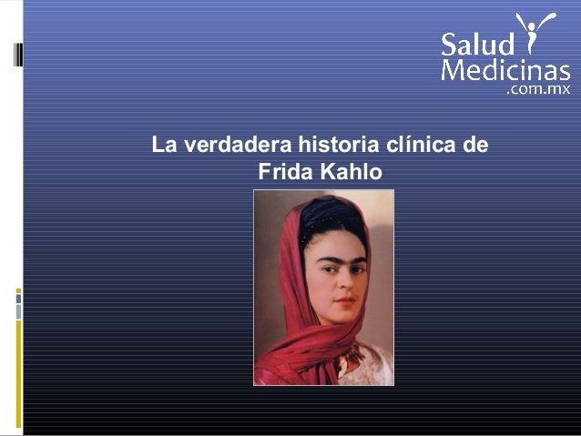 La verdadera historia clínica de Frida Kahlo