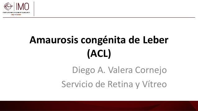 Amaurosis congénita de Leber (ACL) Diego A. Valera Cornejo Servicio de Retina y Vítreo