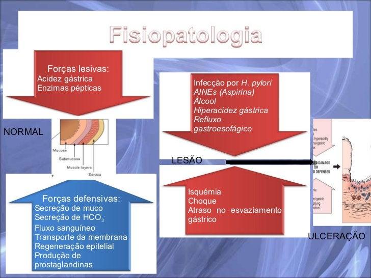 NORMAL LESÃO ULCERAÇÃO Infecção por  H. pylori AINEs (Aspirina) Álcool Hiperacidez gástrica Refluxo gastroesofágico Isquém...