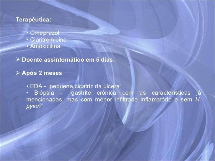 <ul><li>Terapêutica:  </li></ul><ul><ul><li>Omeprazol </li></ul></ul><ul><ul><li>Claritromicina </li></ul></ul><ul><ul><li...
