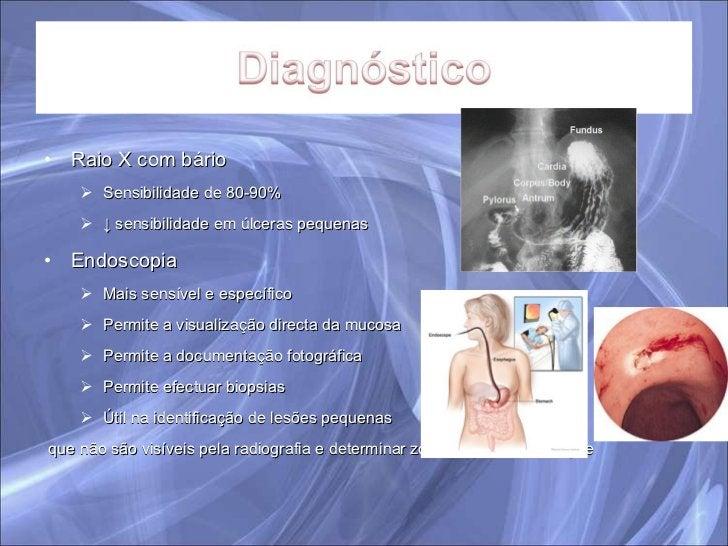 <ul><li>Raio X com bário </li></ul><ul><ul><li>Sensibilidade de 80-90% </li></ul></ul><ul><ul><li>↓  sensibilidade em úlce...