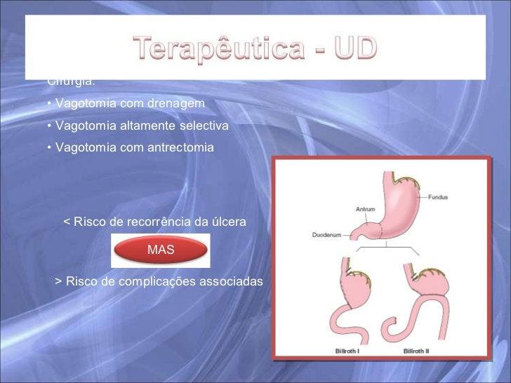 <ul><li>Cirurgia: </li></ul><ul><li>Vagotomia com drenagem </li></ul><ul><li>Vagotomia altamente selectiva </li></ul><ul><...