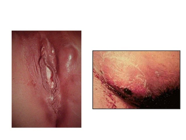 Pictures of STDs: Herpes, Genital Warts, Gonorrhea, STD ...