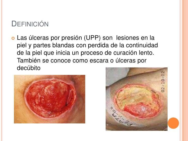 DEFINICIÓN   Las úlceras por presión (UPP) son lesiones en la    piel y partes blandas con perdida de la continuidad    d...