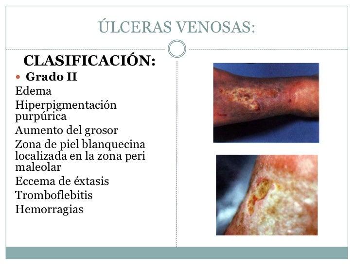 La foto de las cicatrices después de la operación varikoza