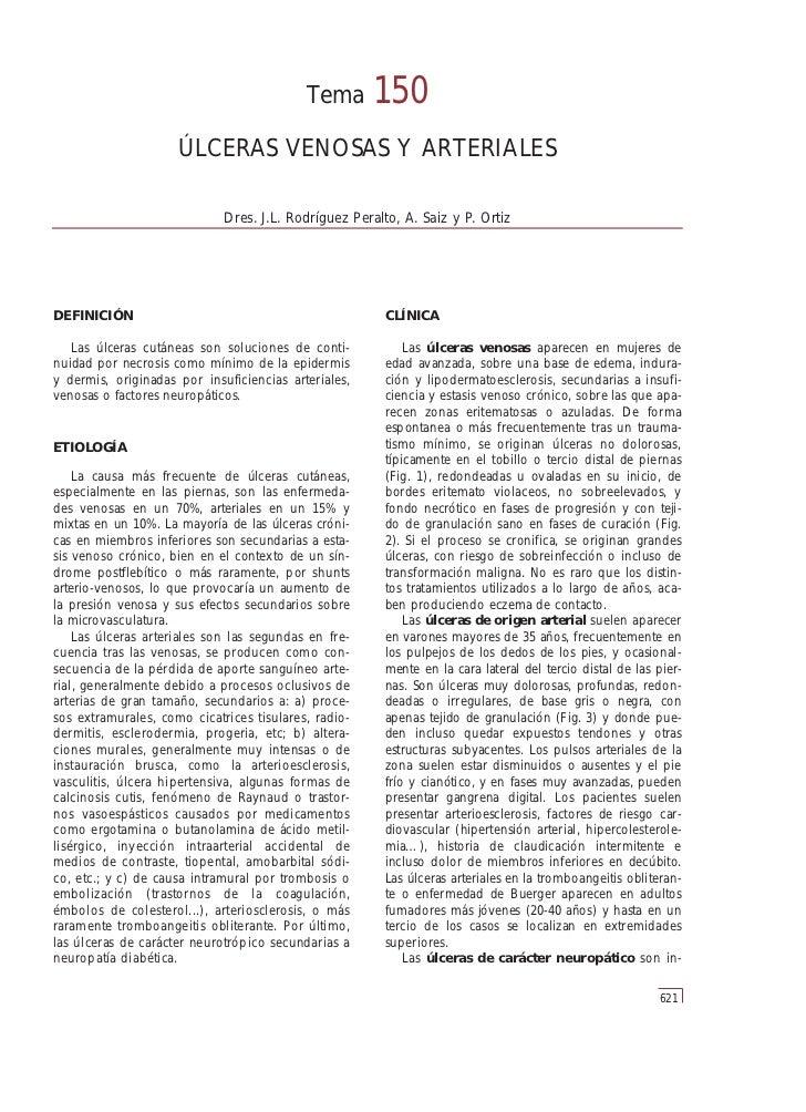 Tema       150                     ÚLCERAS VENOSAS Y ARTERIALES                             Dres. J.L. Rodríguez Peralto, ...