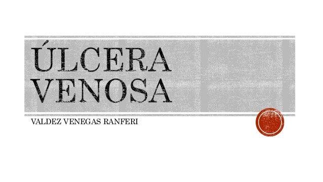VALDEZ VENEGAS RANFERI
