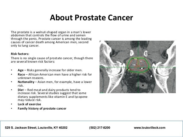 an overview of the causes and treatment of prostate cancer Can prostate cancer be found before a man has symptoms yes nearly 90 percent of all prostate cancers are currently diagnosed at an early stage, and, owing to this, men are surviving longer after diagnosis there are two tests that are used to detect prostate cancer in the absence of any symptoms the first is the digital rectal exam (dre), in.