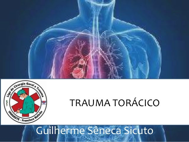 TRAUMA TORÁCICO Guilherme Sêneca Sicuto