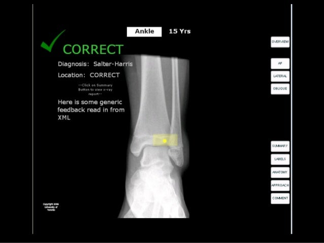 Ankle Study • Recruited broad spectrum of subjects: • All responses logged in a MySQL database Medical Students 20 Residen...