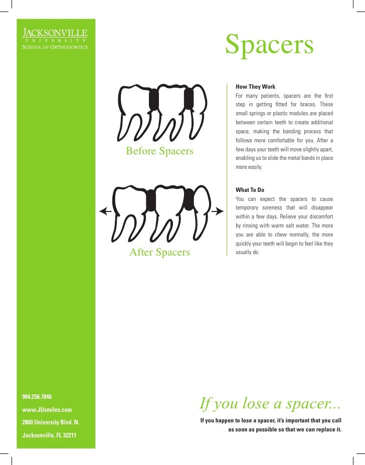 Spacers                                                            How They Work                                          ...