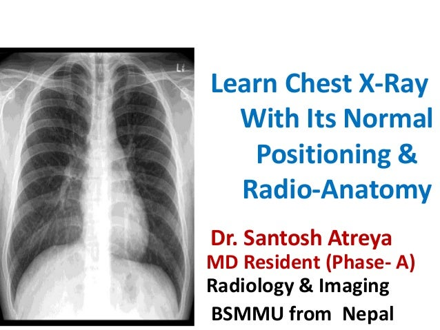 Learn Chest X Ray With Its Normal Positioning Radio Anatomy