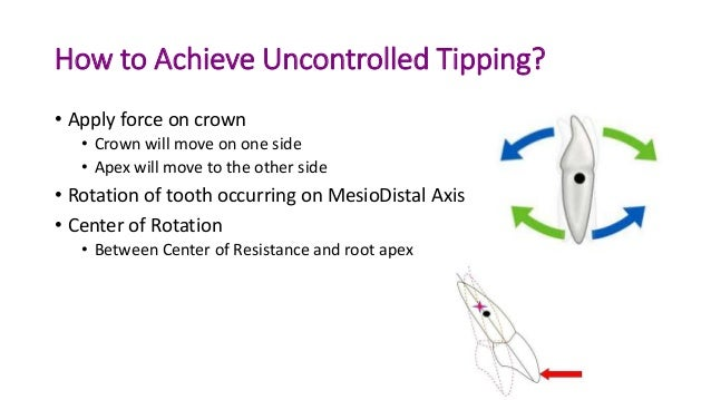 Basics Of Orthodontic Force System