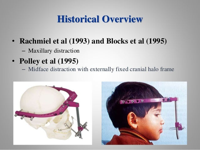 surgical interventions in orthodontics