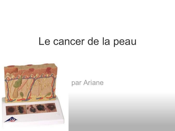 Le cancer de la peau      par Ariane