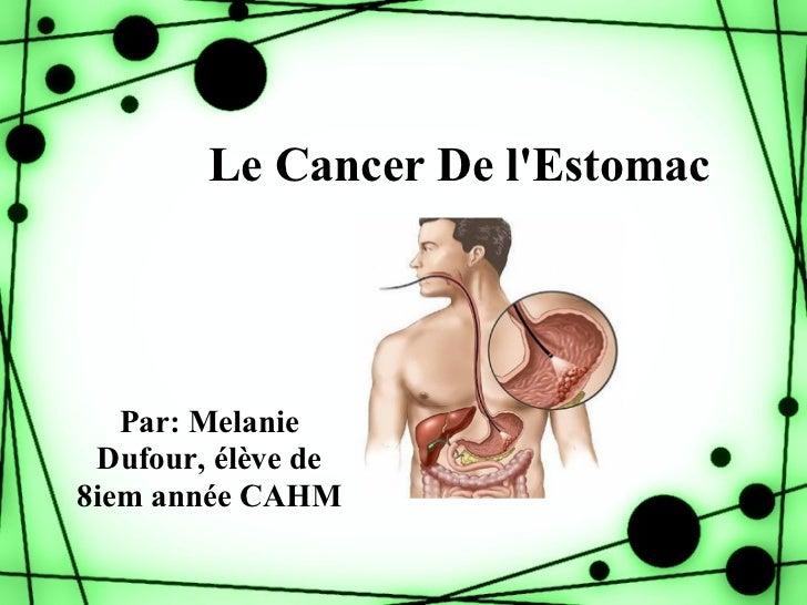 Le Cancer De lEstomac   Par: Melanie Dufour, élève de8iem année CAHM