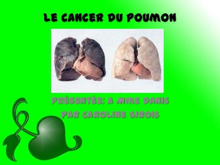 Le cancer du poumon Présentée: a Mme Danis   par Caroline Sirois
