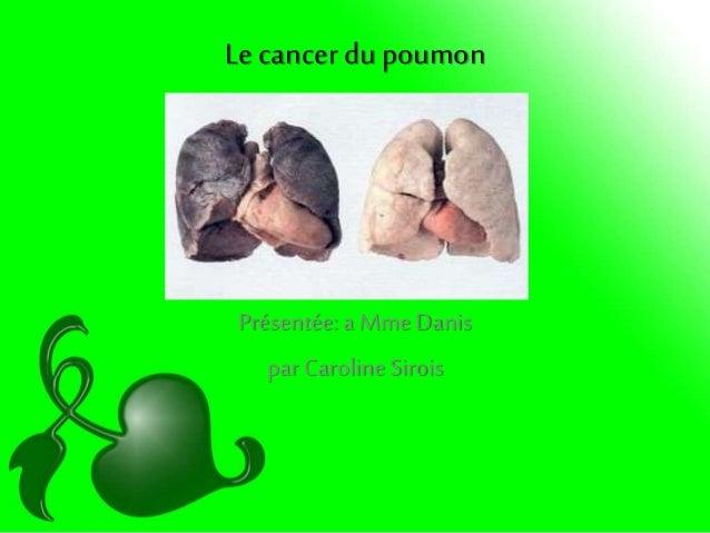Le cancer dupoumon Présentée:a Mme Danis par Caroline Sirois